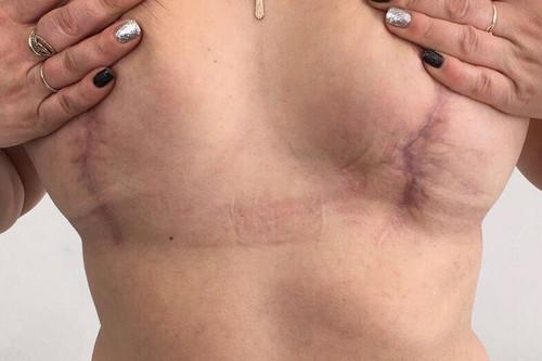 «Я ему доверяла!» Жительнице Магнитогорска изуродовали грудь в частной клинике