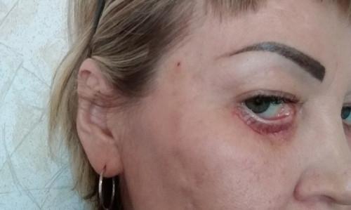 Еще одна пострадавшая. Косметолог из Магнитки изуродовала свою пациентку