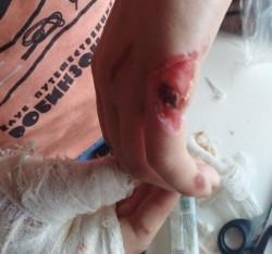 Облили руки кислотой? Жительница Магнитогорска обвинила сотрудников охранной фирмы в избиении