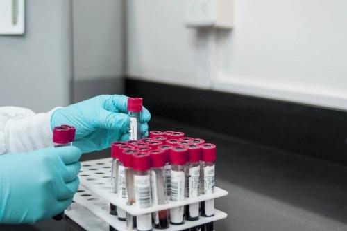 Первые результаты уже через час! Тест на антитела к COVID-19 – во второй горбольнице